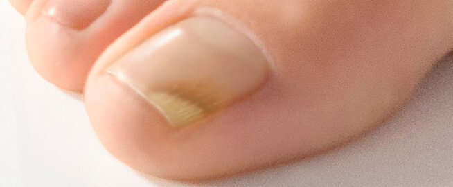 sorte negle sygdom